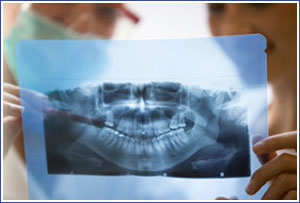emergency tooth extractions virginia