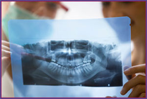 virginia oral surgery tooth extractions